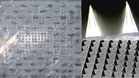 Microneedle Patches